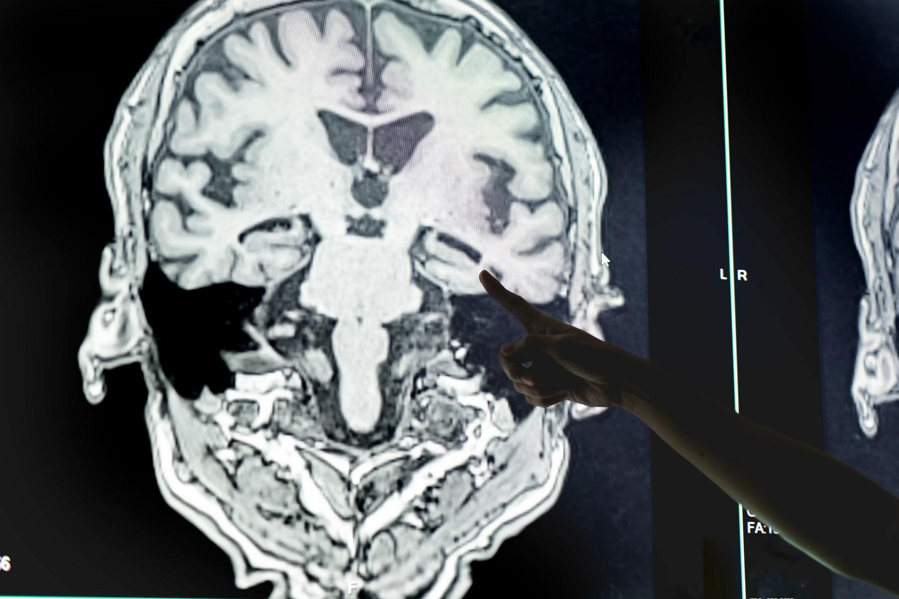 Neuroobrazowanie w otępieniach